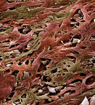 CDC lung cancer cells