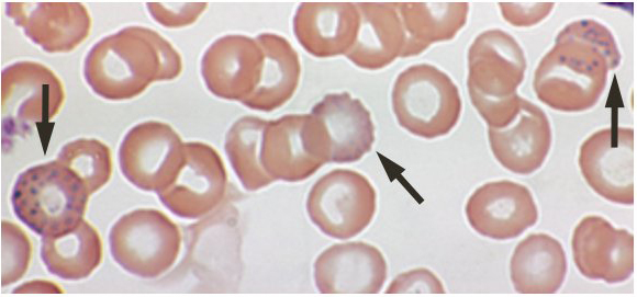 lead poisoning blood film